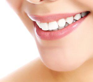 carre_chirurgie-du-sourire